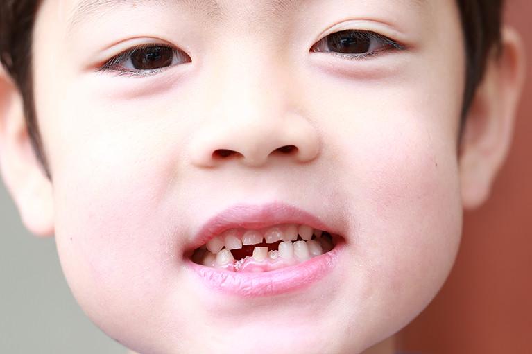 むし歯の多い方への食事指導