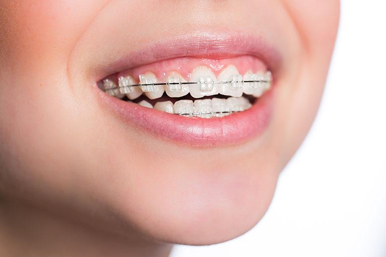 歯科矯正治療で美しい歯並びを