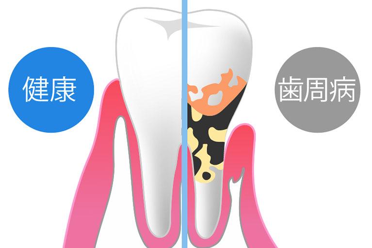 歯周病治療の基本的な流れ